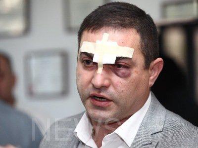 ارمنیستاندا وکیللر وحشیجهسینه دؤیولدو - فوتو