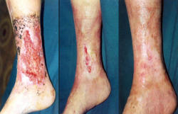 Treatment of trophic ulcers - Video