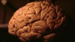 People who exercise may have bigger brains
