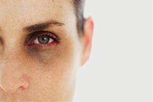 Врачи научились предугадывать смерть пациента по глазам