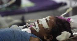 35 Indian children killed due to hospital negligence