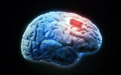 Человеческую память улучшили мозговым имплантатом