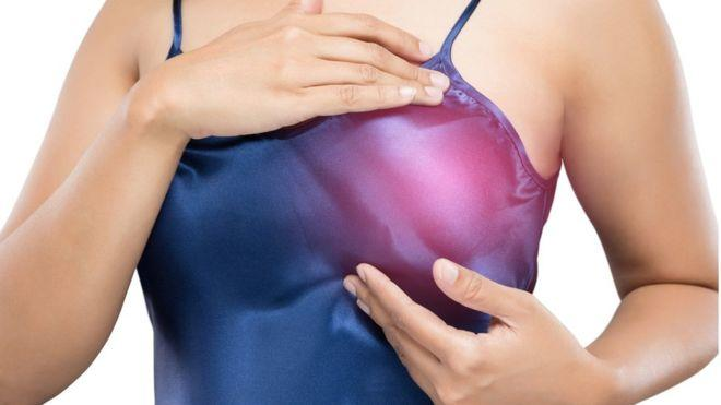 Drug can prevents half of breast cancers