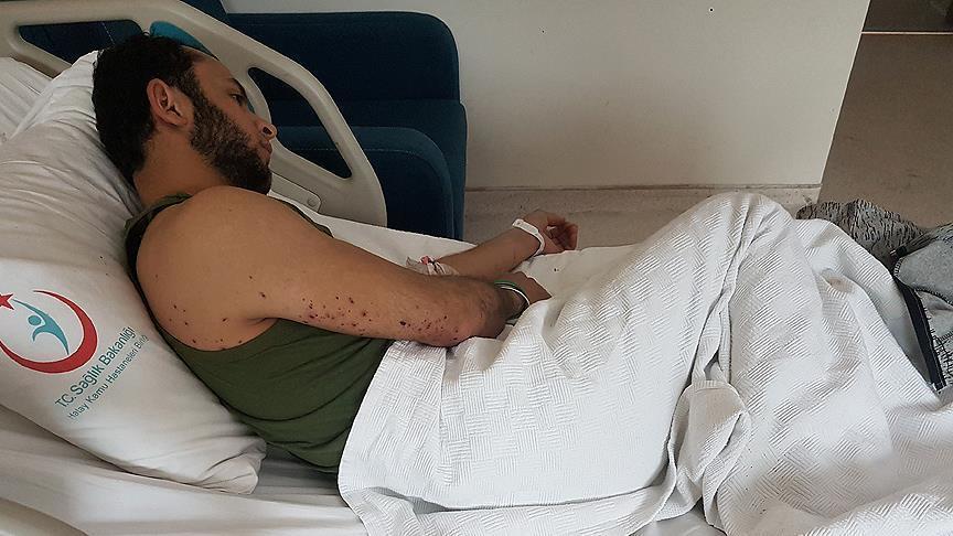 В Африне ранен внештатный корреспондент «Анадолу»