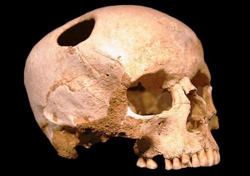 کشف گورستان چند هزارساله در تبریز