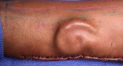 Doctors grow ear on US woman's arm