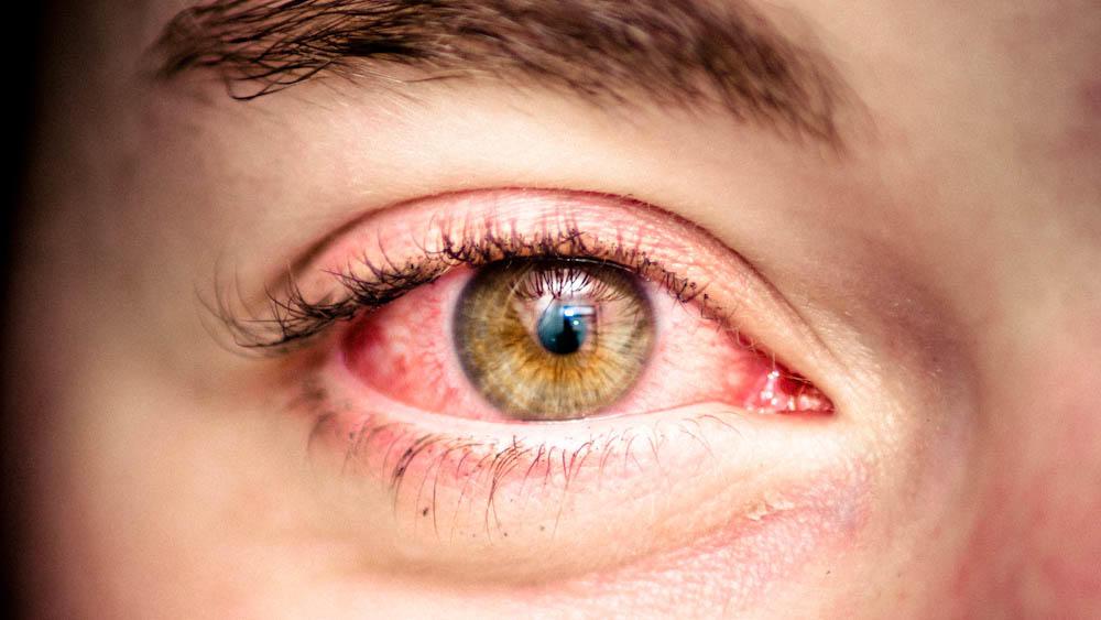 5 причин, почему краснеют глаза