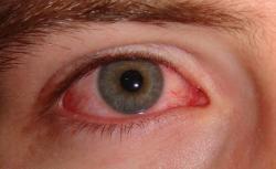 Doctor warns 'super strain' of pink eye