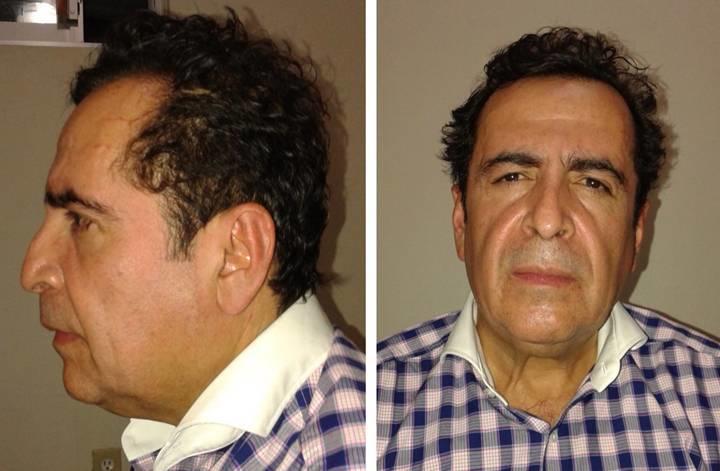 Meksikanın məşhur narkobaronu öldü
