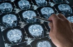 Больные игнорируют эти симптомы рака мозга