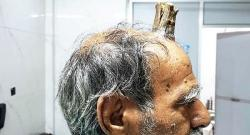 Indian doctors remove 'Devil`s horn' from man's head