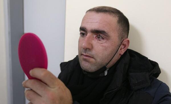 İsrail səfirliyi qazimizə protez göz hədiyyə etdi